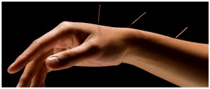 HandWithAcupunctureNeedles