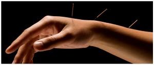 HandWithAcupunctureNeedles